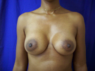 african american breast enhancement after