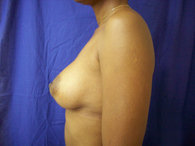 african american after breast plastic surgery