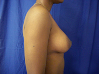 after breast surgery side view