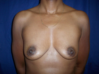 african american breast enhancement before