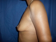 african american before breast plastic surgery
