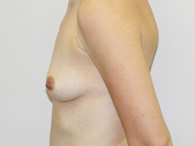 breast before enhancement left side