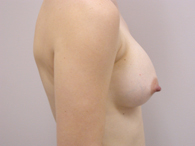 breast after enhancement right side