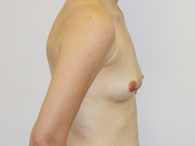 breast before enhancement right side