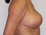 breast plastic surgery after