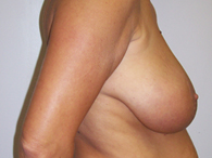 breast plastic surgery before